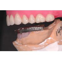 China Professional Dental Implant Attachments , Implant Overdenture Attachments on sale