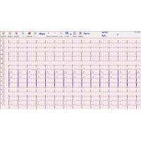 Quality Heart echo stress test 500Hz , stress ecg test PC and box connecte for sale