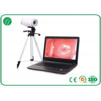China Portable Health Medical Equipment , Digital Electronic Colposcope Equipment on sale