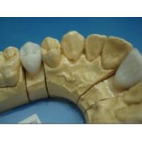 Quality Dental E.max Crown for sale