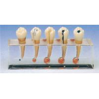 China Clinical Pathology Model of Endodontics includes 5 Parts for Clinic Training on sale