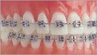 China Dental, Orthodontics, Brackets,Buccal Tubes, on sale