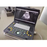 Buy Portable Pregnancy Ultrasound Scanner with Abdominal Convex Transvaginal Transducers at wholesale prices