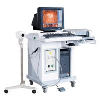 China Electronic colposcope on sale