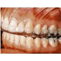 Quality Plastic Dental Night Guard For Bruxism With Custom Fit, Soft / Hard Acrylic for sale