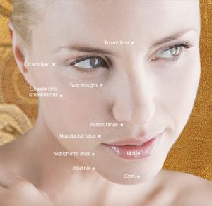 Quality 1.0ml2.0ml New Top-Q Super FineLine Natural Hyaluronic Acid Dermal filler For Fine Wrinkle for sale