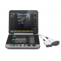 Quality Gray Color S880 Portable Ultrasound Scanner Patient Monitoring Devices for sale