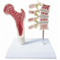 Quality Thighbone Model -EYAM-07 for sale